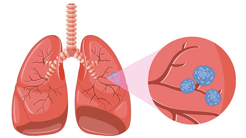 cancer epitelial de pulmon tratament ficat gras forum