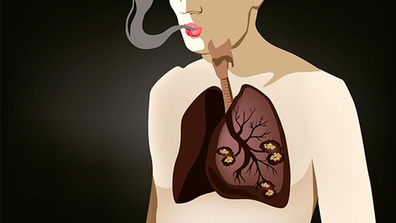 cancer de colon vertebral